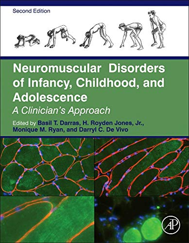 9780124170445: Neuromuscular Disorders of Infancy, Childhood, and Adolescence, Second Edition: A Clinician's Approach