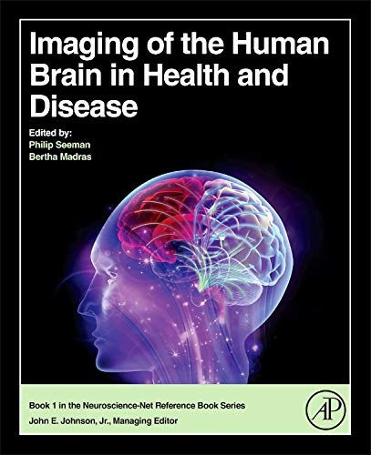 9780124186774: Imaging of the Human Brain in Health and Disease