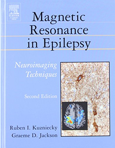 9780124311527: Magnetic Resonance in Epilepsy, Second Edition: Neuroimaging Techniques, Second Edition