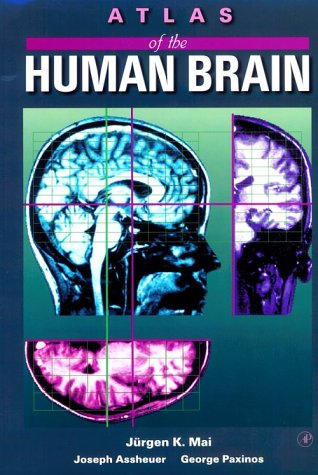 9780124653610: Atlas of the Human Brain
