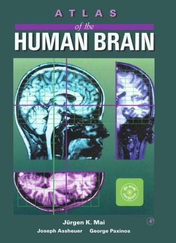 9780124653627: Atlas of the Human Brain