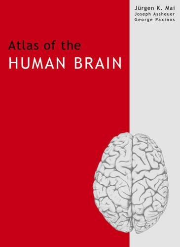 9780124657410: Atlas of the Human Brain