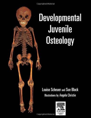 9780126240009: Developmental Juvenile Osteology
