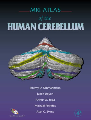 9780126256659: MRI Atlas of the Human Cerebellum