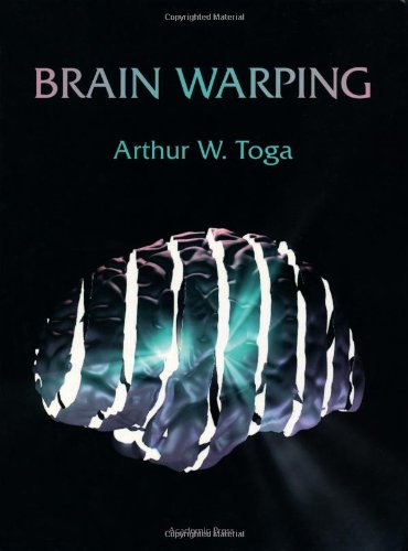9780126925357: Brain Warping