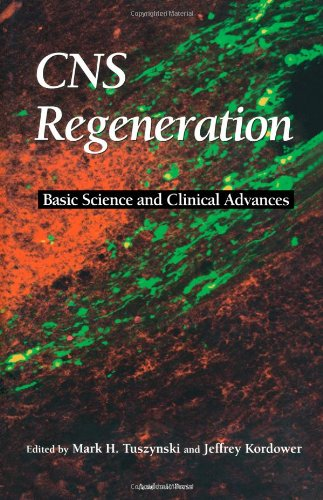 9780127050706: CNS Regeneration: Basic Science and Clinical Advances