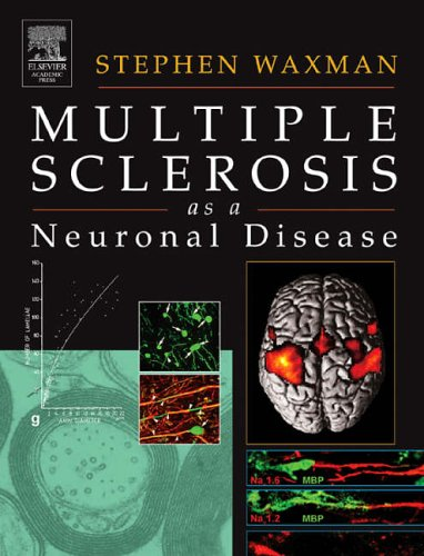 9780127387611: Multiple Sclerosis As A Neuronal Disease