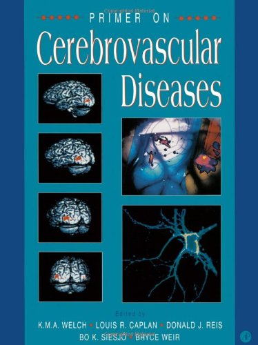 9780127431710: Primer on Cerebrovascular Diseases