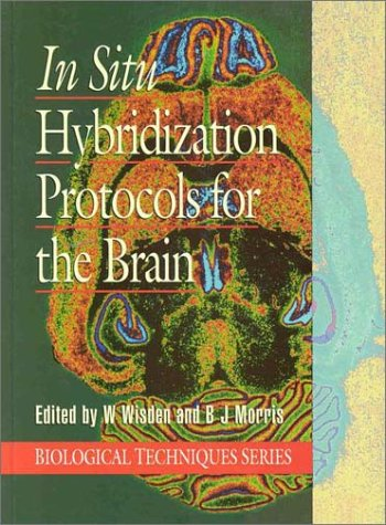 9780127599199: In Situ Hybridization for the Brain (Series: Biological Techniques)