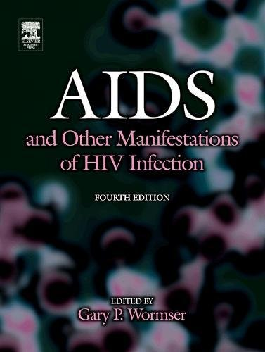 9780127640518: AIDS and Other Manifestations of HIV Infection, Fourth Edition