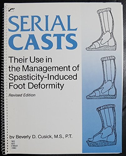 9780127845753: Serial Casts: Their Use in the Management of Spasticity-Induced Foot Deformity, REVISED EDITION