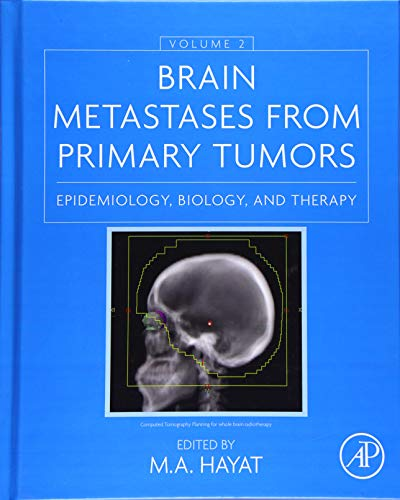 9780128014196: Brain Metastases from Primary Tumors, Volume 2: Epidemiology, Biology, and Therapy
