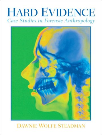 9780130305671: Hard Evidence: Case Studies in Forensic Anthropology