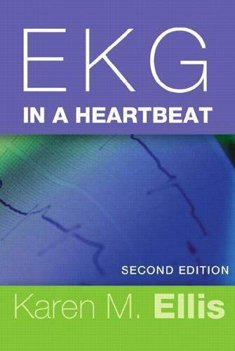 9780132499323: EKG in a Heartbeat (2nd Edition)