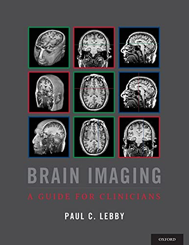 Brain Imaging: A Guide for Clinicians: Lebby, Dr. Paul C.