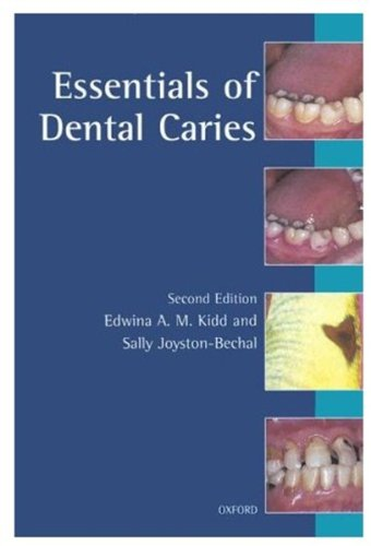 9780192626912: Essentials of Dental Caries: The Disease and Its Management (Oxford medical publications)