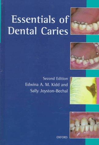 9780192626929: Essentials of Dental Caries