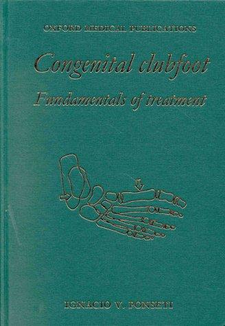 9780192627650: Congenital Clubfoot: Fundamentals of Treatment