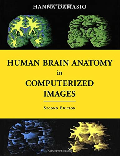9780195165616: Human Brain Anatomy in Computerized Images
