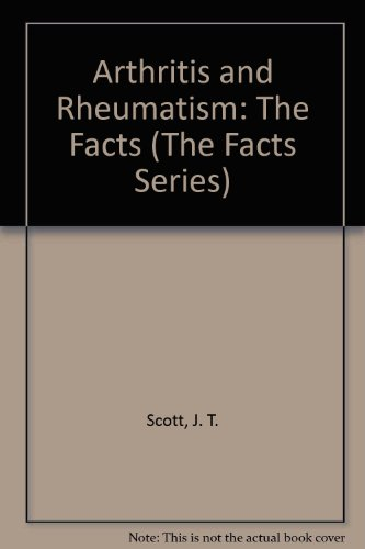 9780195202786: Arthritis and Rheumatism: The Facts (The Facts Series)