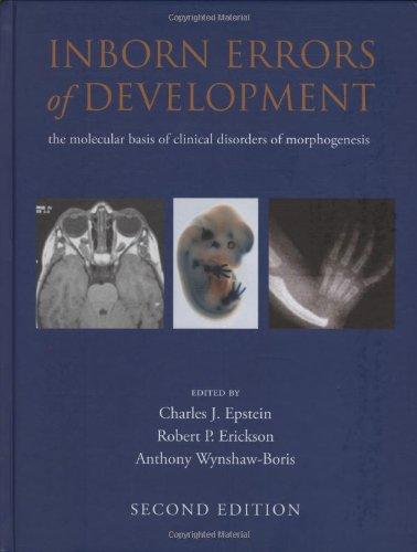 9780195306910: Inborn Errors of Development (Oxford Monographs on Medical Genetics)