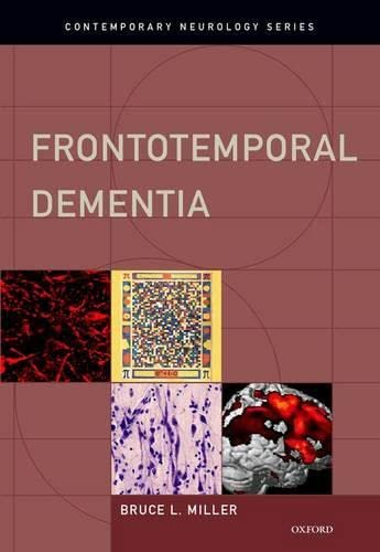 9780195380491: Frontotemporal Dementia (Contemporary Neurology Series)