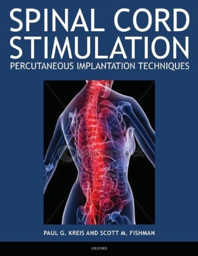 9780195393644: Spinal Cord Stimulation: Percutaneous Implantation Techniques