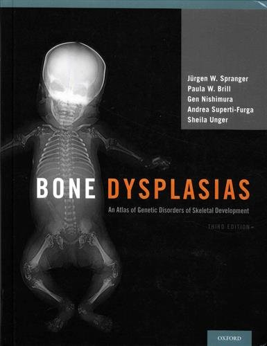 9780195396089: Bone Dysplasias: An Atlas of Genetic Disorders of Skeletal Development