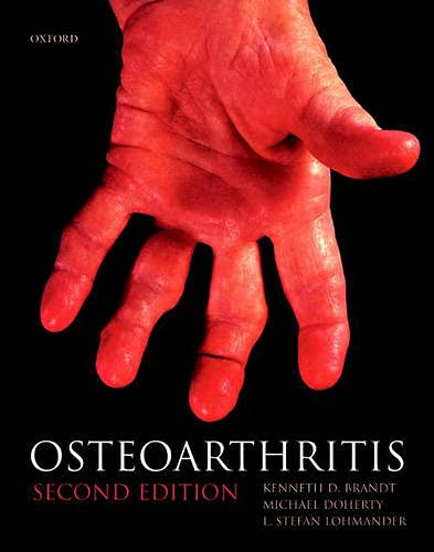 Osteoarthritis (Oxford Medical Publications): Kenneth D. Brandt,