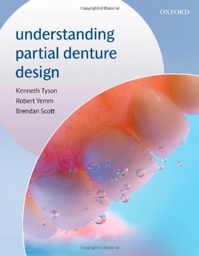 9780198510925: Understanding Partial Denture Design