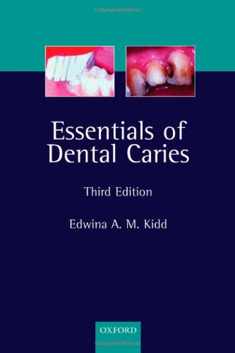 Essentials of Dental Caries: The disease and: Edwina Kidd