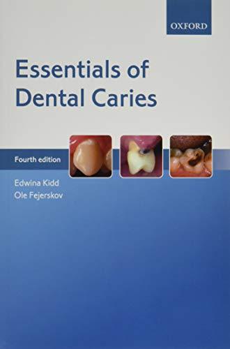 Essentials of Dental Caries: Edwina Kidd