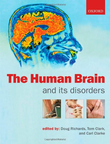 9780199299843: The Human Brain and Its Disorders