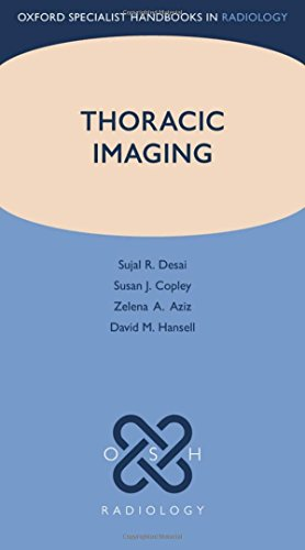 9780199560479: Thoracic Imaging (Oxford Specialist Handbooks in Radiology)