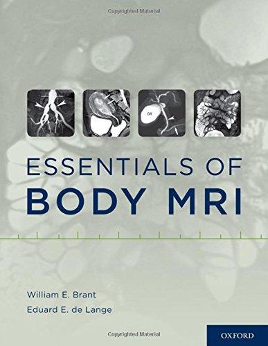 9780199738496: Essentials of Body MRI