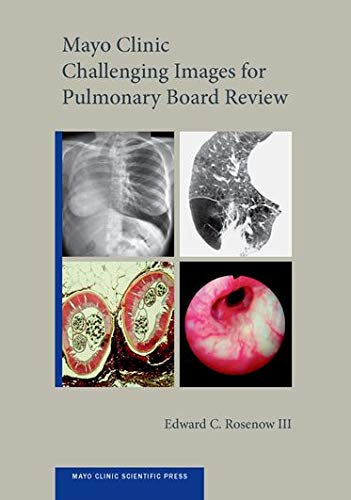 Mayo Clinic Challenging Images for Pulmonary Board Review (Mayo Clinic Scientific Press): Rosenow  ...