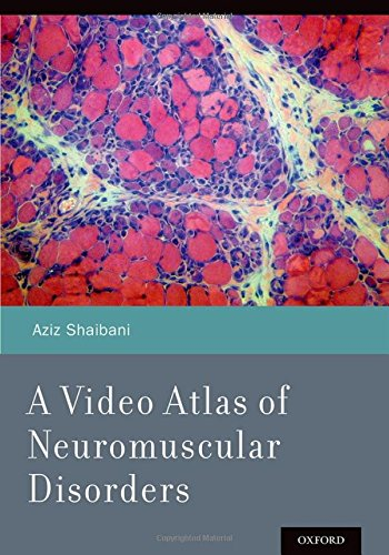 9780199898152: A Video Atlas of Neuromuscular Disorders