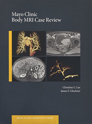 9780199915705: Mayo Clinic Body MRI Case Review (Mayo Clinic Scientific Press)