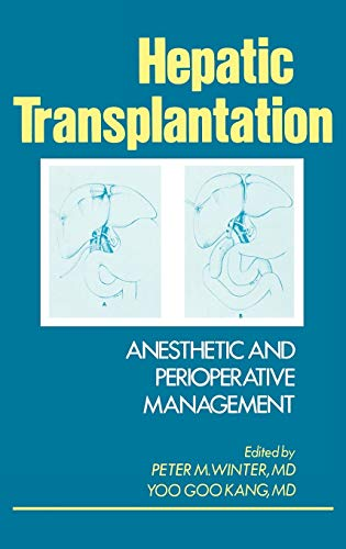 9780275921293: Hepatic Transplantation: Anesthetic and Perioperative Management