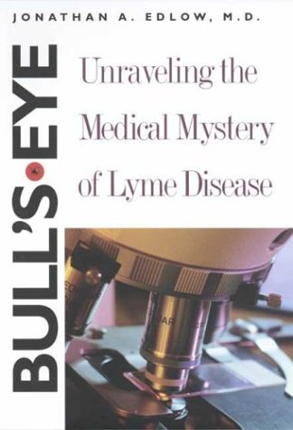 9780300098679: Bull's-Eye: Unraveling the Medical Mystery of Lyme Disease