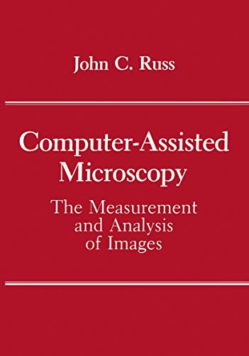 9780306434105: Computer-Assisted Microscopy: The Measurement and Analysis of Images