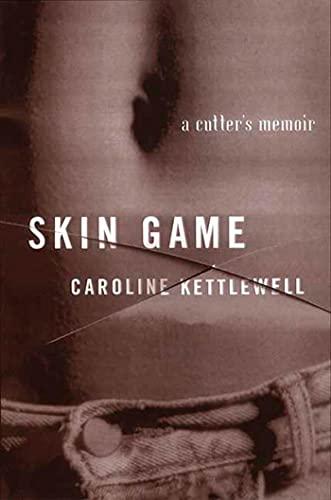 9780312263935: Skin Game: A Memoir