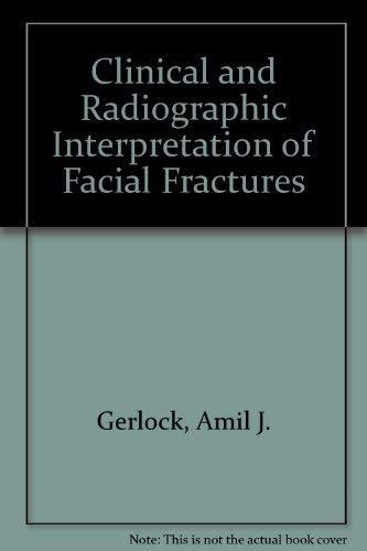 Clinical and Radiographic Interpretation of Facial Fractures: Amil J. Gerlock;