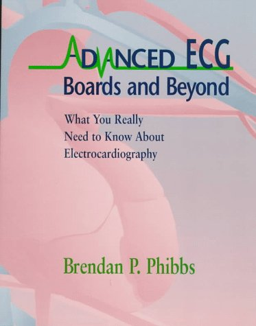 9780316705127: Advanced Ecg: Boards and Beyond : What You Really Need to Know About Electrocardiography