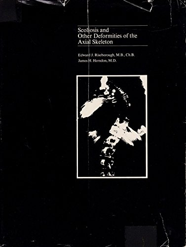 9780316747202: Scoliosis and other deformities of the axial skeleton