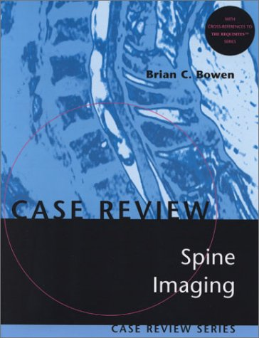 9780323005074: Spine Imaging: Case Review