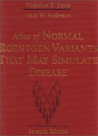 9780323013222: Atlas of Normal Roentgen Variants That May Simulate Disease, 7e