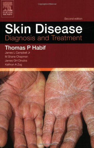 9780323027533: Skin Disease: Diagnosis and Treament