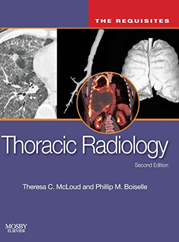 9780323027908: Thoracic Radiology: The Requisites