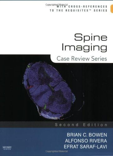9780323031240: Spine Imaging: Case Review Series
